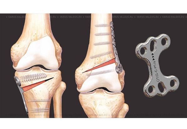 Операция на плечевой сустав в иваново дипроспан в сустав параартикулярная